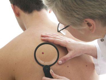 OJO CON EL  SOL. Consejos para la prevención del cáncer de piel