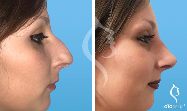 Dolor de cabeza después del relleno nasal